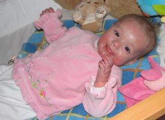 baby met koemelkallergie